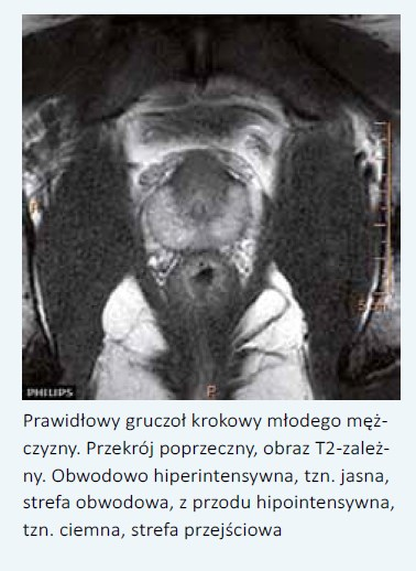 objętość prostaty norma prostate cancer institute tulsa